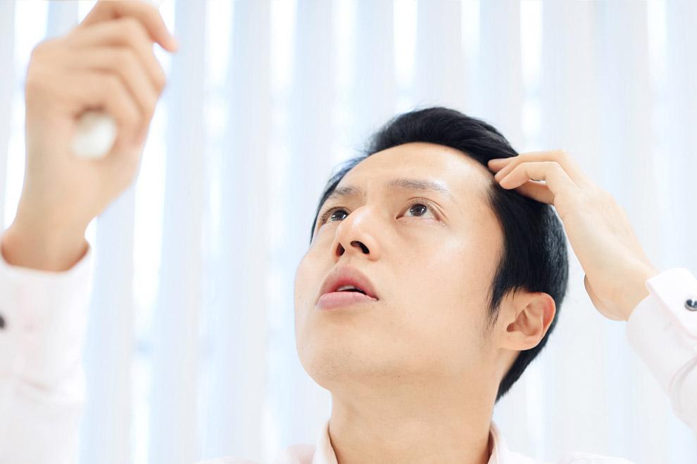 毛髪診断士による増毛